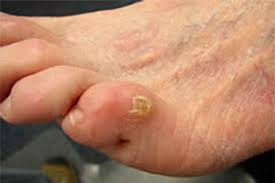 How To Remove Planters Warts by Plantar Warts On Toe Can Be Painful But These Treatments Can Help