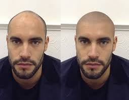 pics of scalp micropigmentation on people with long hair scalp micropigmentation hair tattoo the definitive solution