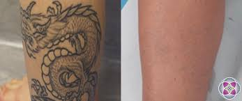 laser tattoo removal how a tattoo is removed