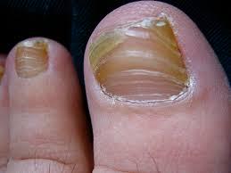 how to cure toe nail fungus namibiauraniuminstitute com