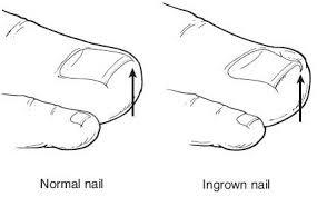 ingrown toenail treatment in bridgeport connecticut