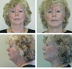 hairstyles that cover face lift scars short scar facelifts plastic surgery montreal