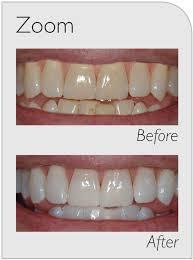 zoom teeth whitening melbourne teeth whitening in hampton