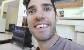 whitening b stunning natural teeth whitening that works amazon