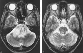 Role Of Brain Stem Brainstem Tuberculoma Mimicking Glioma The Role Of