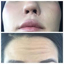 Groupon Teeth Whitening Chicago Beauty Skin Laser 15 Photos Medical Spas 11030 Medlock