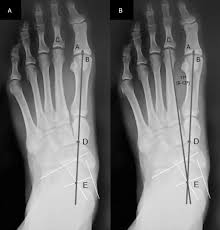 the mechanical axis of the first ray a radiographic assessment in