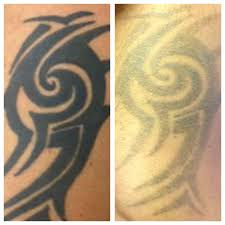 laser tattoo removal at monumental ink colchester essex