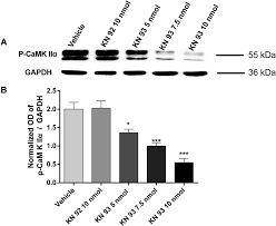 inhibition of camkiiα in the central nucleus of amygdala