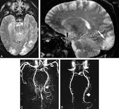 Define Cortical Blindness Etiology Of Cortical And White Matter Lesions In Cyclosporin A And