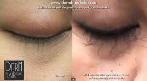 hair transplant costs in the philippines eyelash hair transplant hairstyle ideas