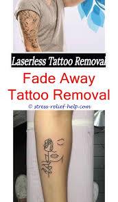 tattoo removal utah cost acid tattoo removal tattoo removal orlando cost does tattoo