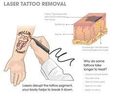 laser tattoo removal before u0026 after 3 treatments be sure to