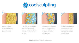 new coolsculpting freeze away fat dermis ottawa skin care