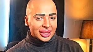 Memes De Kim Kardashian - le fan de kim kardashian défiguré par la chirurgie veut les mêmes