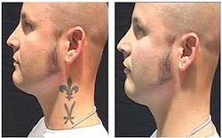 laser tattoo removal treatment in delhi