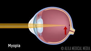 Eye Anatomy And Physiology Eye Anatomy And Common Defects Animated Tutorial Youtube