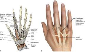 Foot Ligament Anatomy Extensor And Flexor Tendon Injuries In The Hand Wrist And Foot