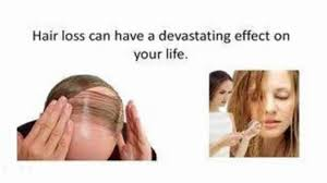 natural treatment review female hair loss treatment video