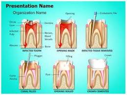 33 best dental powerpoint templates u0026 backgrounds images on