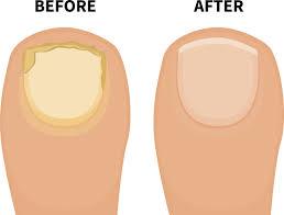 10 home remedies to get rid of toenail fungus fast