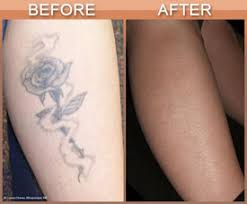 best option for tattoo removal on long island is laser treatment