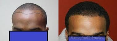 hairline restoration for black men hair restoration procedure result photographs with 1300 grafts