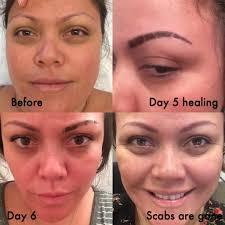 Red Flaky Skin Around Nose And Eyebrows Portland Cosmetic Tattoo U2039 Portland Wedding Makeup Artist