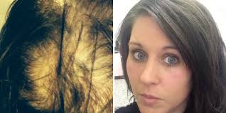 woman who suffered severe hair loss undergoes transformation in