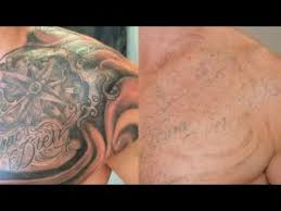 cheap tattto removal technique archives chads tattoo tactic