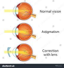 Anatomy Of The Eye Astigmatism Corrected By Cylindrical Lens Eyesight Stock Vector