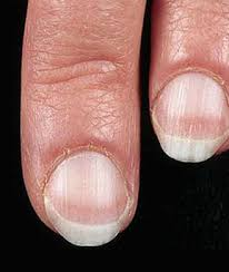 checking your fingernails for the following abnormalities can help