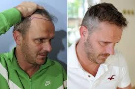 hair transplant america didi hamann completes wayne rooney style hair transplant in bid to