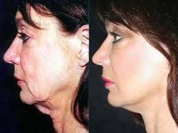 flattering hairstyles for double chins or sagging necks face exercises for sagging hog jowls trick 1 youtube