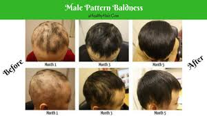 hair loss and baldness thinning hair in men and women