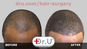 dr u hair and skin clinics google