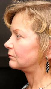 hairstyles that cover face lift scars the short scar facelift candidate mini facelift scars pinterest