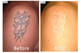 tattoo removal shoulder laser tattoo removal blackpool the fylde clinic