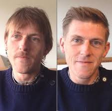 before and after thinning mens haircut 50 classy haircuts and hairstyles for balding men thin hair