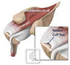 Tendons In The Shoulder Diagram Rotator Cuff Tears Shoulderdoc