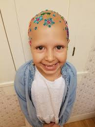 Daughter Nervous Mom Does Unthinkable For Daughter With No Hair Bring On The Tears