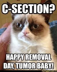 Tumor Meme - c section happy removal day tumor baby meme factory
