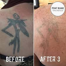 point blank tattoo removal pointblanktattooremoval instagram