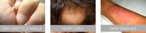 Vitamin Deficiency And Hair Loss 6 Vital Vitamins For Hair Growth Camformulas