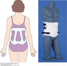 orthotics physical rehabilitation 6e f a davis pt collection