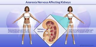 anorexia nervosa affecting kidneys risk factors causes