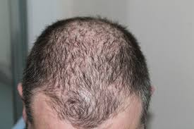 Injection In Scalp For Hair Growth Replicel Says Hair Loss Therapy Is Safe With Glimmers Of Efficacy
