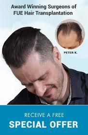 hair transplant america forhair clinic fue hair transplant restoration atlanta