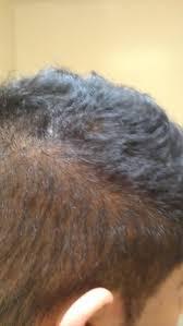 Hair Loss Vitamin Deficiency Dupa And Vitamin D Deficiency Baldtruthtalk Com