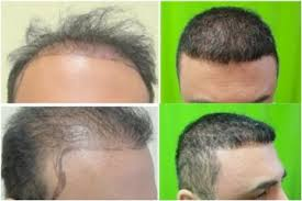 best hairtransplant in the world finding the best hair restoration clinic in the world dermhair